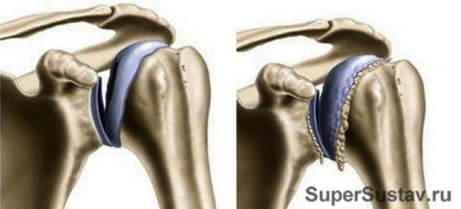 Симптомы и способы лечения артрита плеча