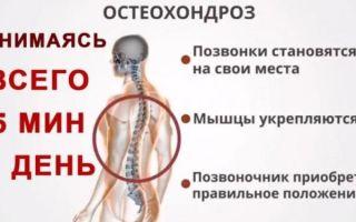 Главные причины возникновения остеохондроза позвоночника
