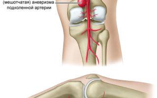 Почему болит внутренняя сторона колена и как это лечить