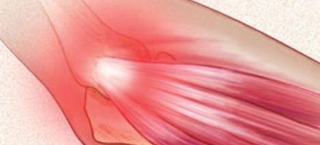 Симптомы эпикондилита локтевого сустава и способы лечения