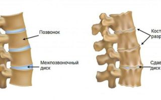Артроз шейного отдела позвоночника и его лечение