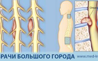Симптомы и признаки рака позвоночника