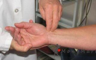 Воспаление сухожилий кисти