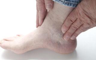 Воспаление (артрит) голеностопного сустава