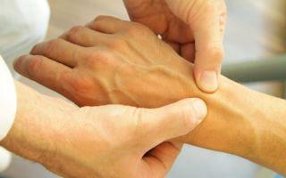 Воспаление связок кисти руки
