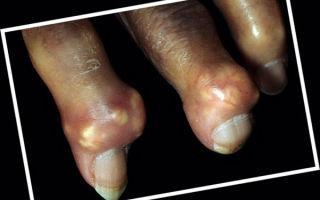 Тофусы при подагре и их лечение