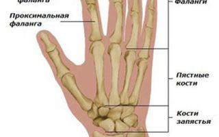 Боли в кистях рук и пальцах