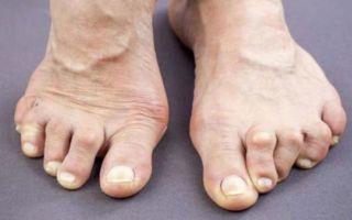 Особенности артрита суставов стопы и его лечение