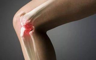 Как правильно лечить гонартроз коленного сустава 1 степени