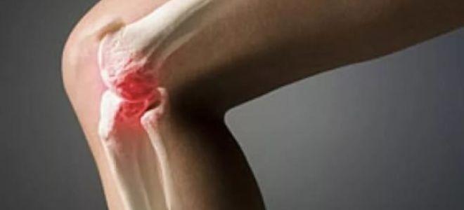 Симптомы и причины появления артроза