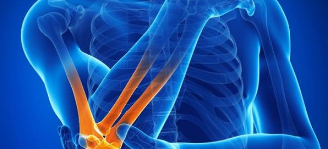 Шпора локтевого сустава: первые признаки заболевания, способы лечения