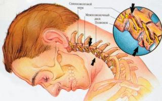 Как правильно лечить хондроз?