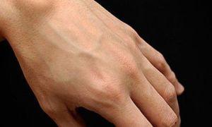 Что делать, если появилась шишка на кисти руки: развитие образования, эффективные методы лечения