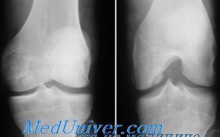 Болезнь кенига (рассекающий остеохондрит)