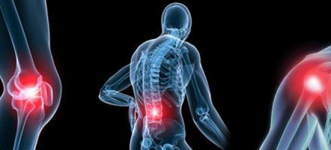 Что такое остеосаркома: первые признаки заболевания, оценка прогноза
