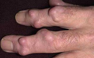 Гигрома: симптомы, лечение, причины