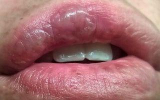 Как и чем лечить ожог на губе — обзор медицинских и народных средств для восстановления поврежденных тканей
