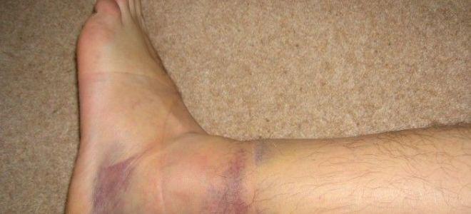 Что делать, если подвернули ногу и опухла щиколотка:  последствия, лечение и реабилитация