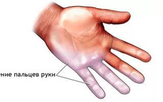Онемение безымянного пальца на руке