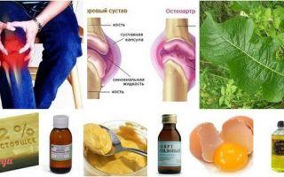 Средства от болей в суставах