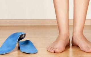 Как выбрать ортопедические стельки при плоскостопии