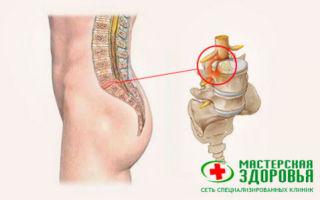 Протрузия дисков шейного отдела позвоночника и ее лечение