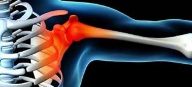 Электромиография: что это, при каких заболеваниях применяют диагностику