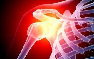 Что такое привычный вывих плечевого сустава и его лечение: симптомы повреждения и способы реабилитации