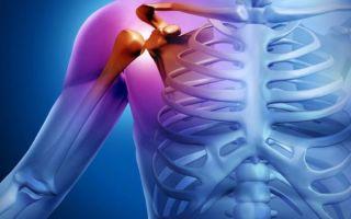Шейно-плечевой синдром: выявление причины заболевания и его лечение