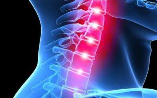 Лечебная шейная гимнастика — комплексы упражнений для профилактики и эффективного лечения