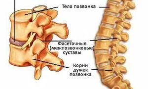 Как лечить шейный хондроз: советы врача