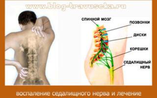Что делать если защемило нерв в спине: советы врачей
