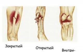 Симптомы переломов костей