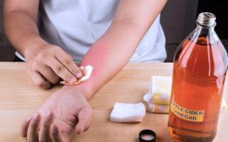 Как и чем снять боль при ожоге в домашних условиях — рейтинг эффективных медикаментозных препаратов и народных методов