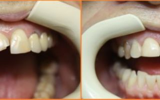 Восстановление зуба после перелома — современные методы и способы реставрации, отзывы пациентов