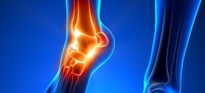 Что такое пронация стопы: диагностика и лечение заболевания в домашних условиях