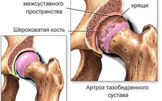 Как лечить тазобедренные суставы?