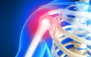 Первые симптомы плексита плечевого сустава и лечение недуга