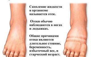 Как быстро и эффективно снять отек с ноги после перелома — рекомендации специалистов и народные советы
