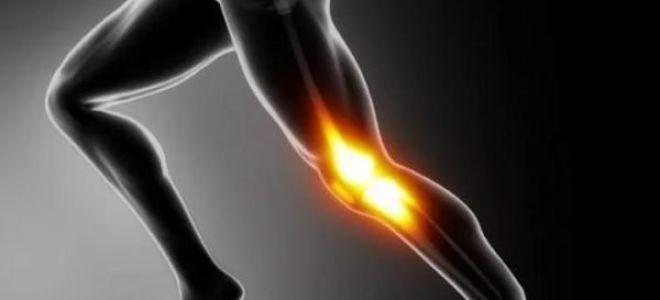 Способы лечения гонартроза коленного сустава 3 степени