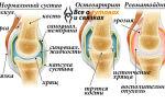 Причины боли в коленном суставе