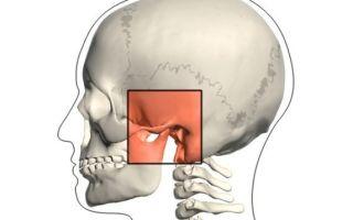 артрит челюстного сустава чем лечить