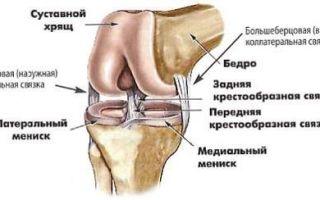 Что делать при растяжении связок коленного сустава?