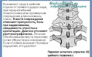 Остистые отростки позвоночника и их переломы