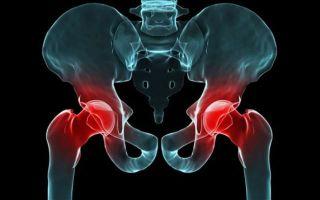 Что такое эпителиальный копчиковый ход: причины появления заболевания и методы лечения