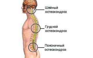 Признаки хондроза грудного отдела позвоночника