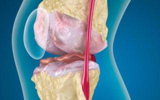 Диета при коленном артрозе (гонартрозе)