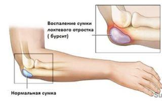 Основные причины и симптомы бурсита локтевого сустава и методы лечения
