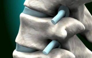 Симптомы рака разных отделов позвоночника