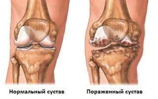 Гонартроз (артроз коленного сустава) 2 степени
